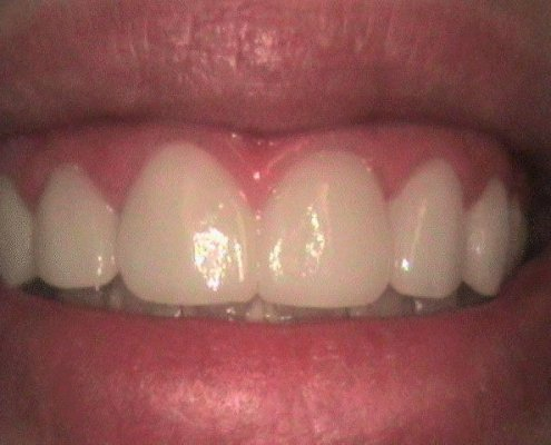 phoca_thumb_l_Veneers-After