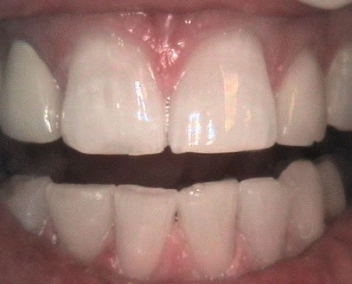 phoca_thumb_l_Zoom-Whitening-After