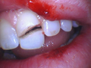 example of dental trauma an athlete suffered who wasn't protected
